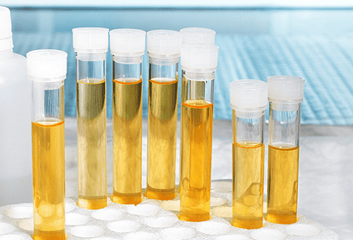 How to store urine for analysis before handing it over to the laboratory